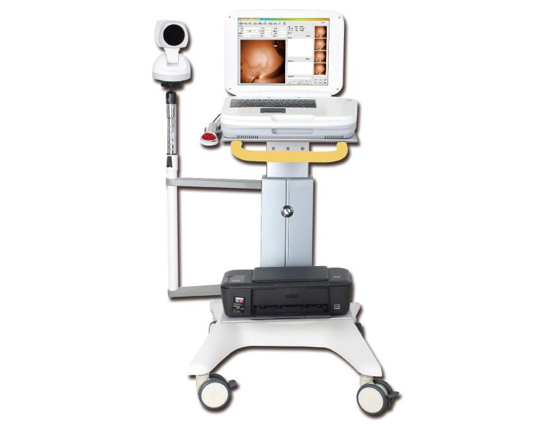 Infrared Mammary Gland Examination System