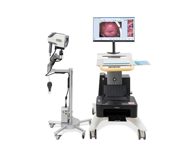 digital video colposcopy