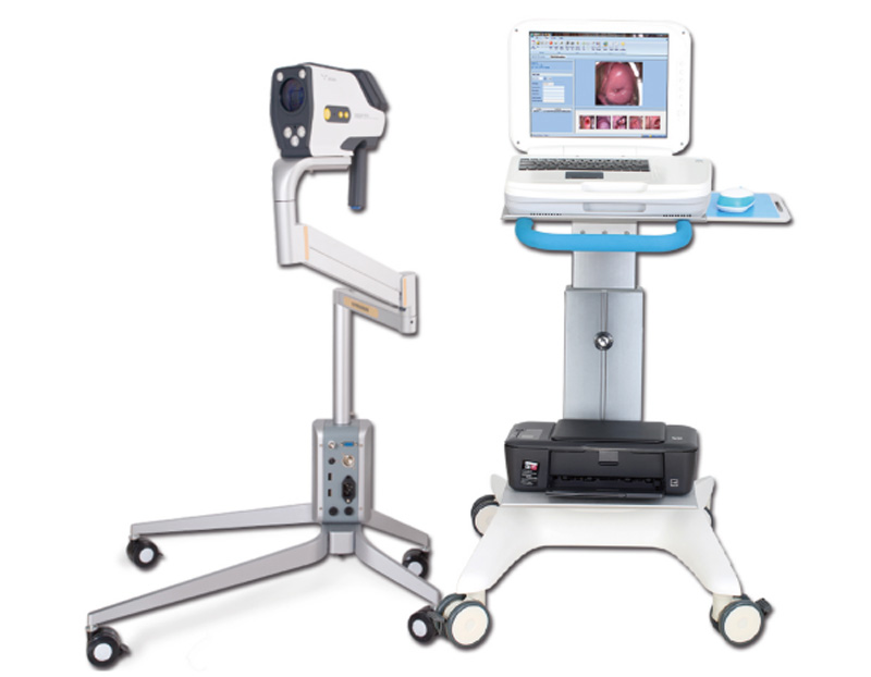 YKD-3003 Medical Video Colposcope