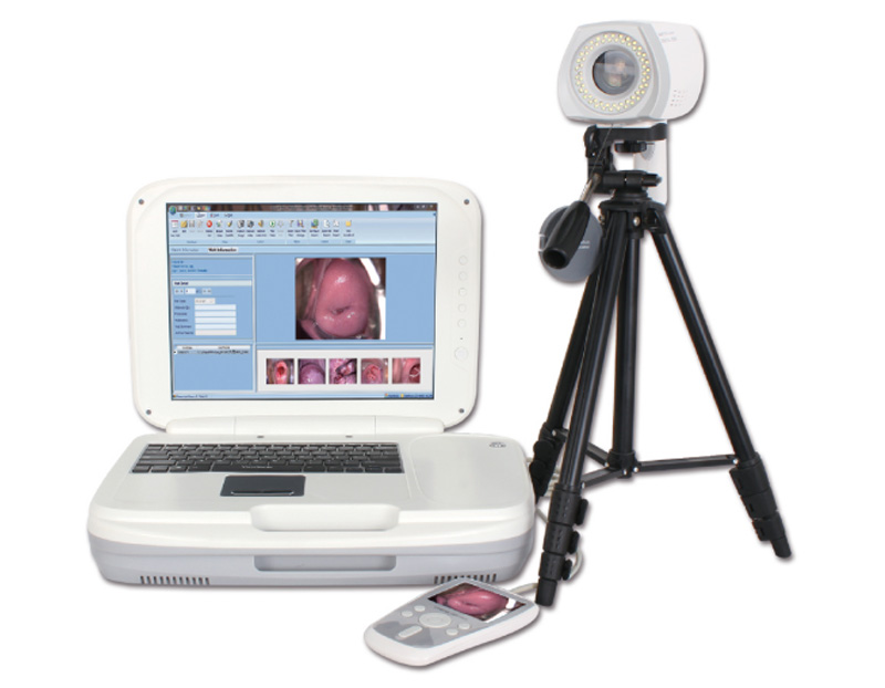 YKD-3004 Portable Digital Colposcope