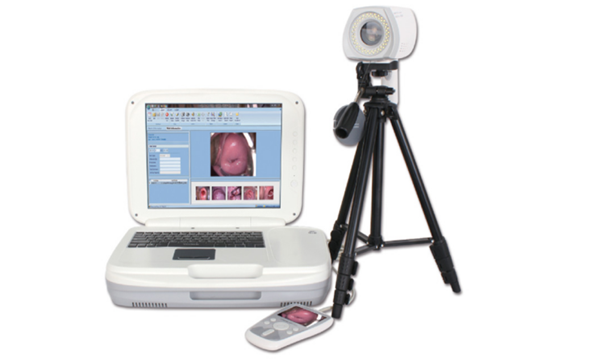 Indication of HD Digital Electronic Colposcope