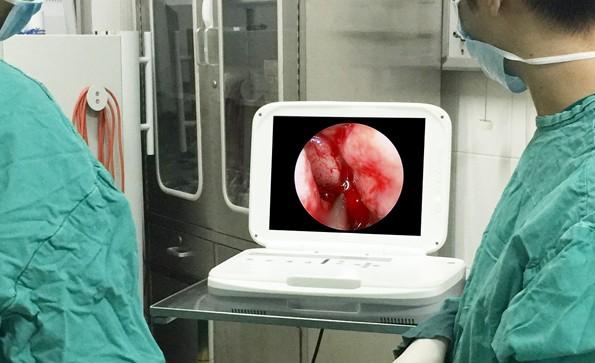 Does ENT endoscopy hurt
